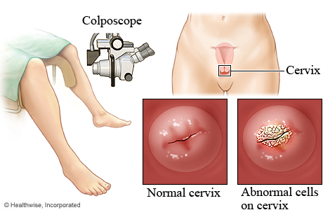 Colposcope and cervix