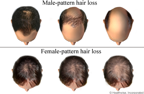 Progression of inherited hair loss in men and women
