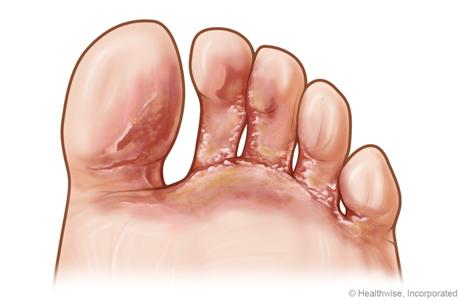 Pie de atleta de tipo vesicular entre los dedos del pie