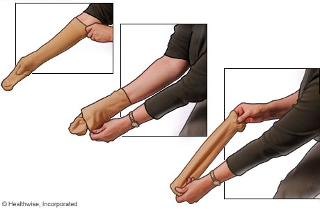 Imagen de cómo ponerse medias de compresión: Paso 2