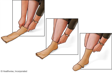 Picture of how to put on compression stockings: Step 3