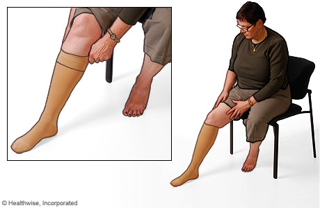 Picture of the proper use of compression stockings: Step 4