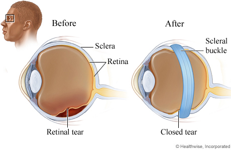 A retinal tear and a scleral buckle