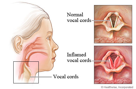 Inflamed vocal cords in laryngitis