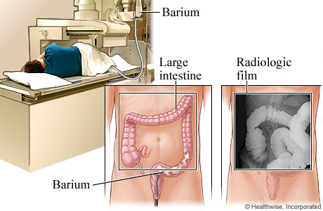 Barium enema and how it looks on an X-ray