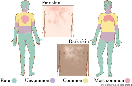 Tinea versicolor on fair skin and dark skin, and where it occurs on the body