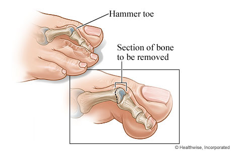 Hammer toe and the section of bone to be removed