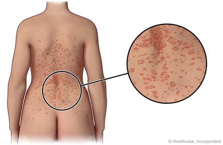 Pitiriasis rosada en la espalda, con un primer plano del salpullido