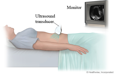 Woman having a transabdominal ultrasound