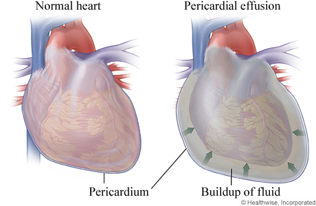 Normal heart and heart with pericardial effusion