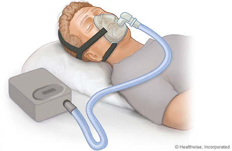 Continuous positive airway pressure (CPAP) device