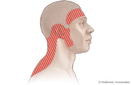 Imagen de posibles zonas de dolor con un dolor de cabeza por tensión