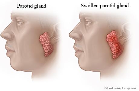 Normal parotid gland and swollen parotid gland