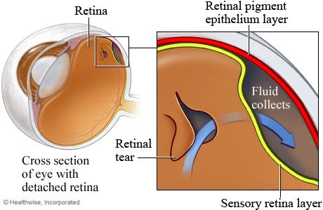 A detached retina
