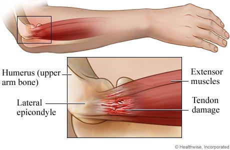 Tennis elbow anatomy: side view