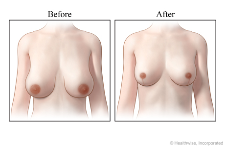 Views of breasts, before and after a breast reduction