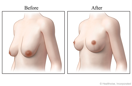 Views of breasts, before and after a breast lift