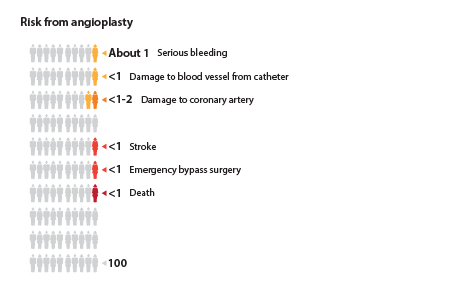 Out of 100 people who have angioplasty, about 1 will have serious bleeding or damage to a blood vessel from the catheter; about 1 to 2 will have damage to the coronary artery; about 1 will have a stroke or need emergency bypass surgery; and about 1 will die.