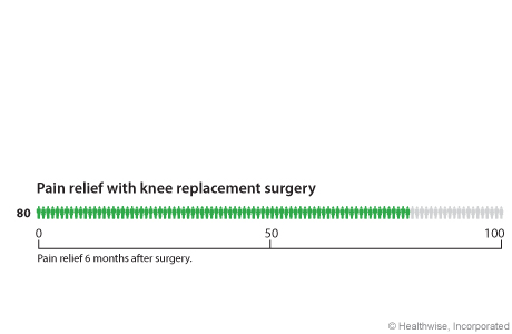 Out of 100 people who have knee replacement surgery, 80 have pain relief within 2 years after surgery.