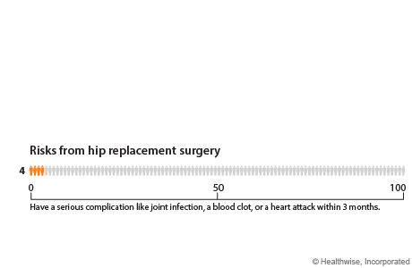 Out of 100 people who have hip replacement surgery, 4 will have a serious complication like joint infection, a blood clot, or a heart attack within 3 months.