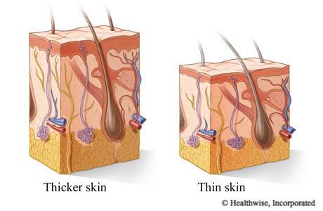 Cross section of thicker skin and thinner skin