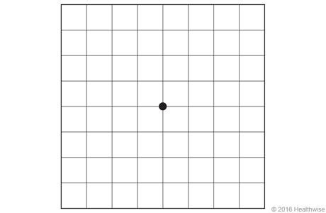 Normal Amsler grid