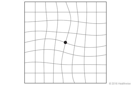 Rejilla de Amsler con líneas onduladas