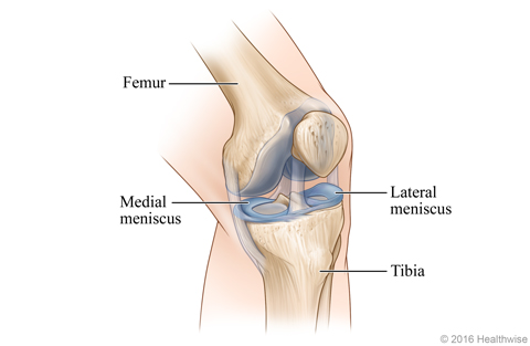 Skeletal view of left knee, showing the meniscus on the outer (lateral) and inner (medial) sides of the knee
