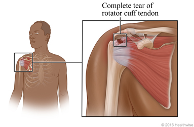Location of rotator cuff in shoulder, with detail of complete tear of rotator cuff tendon