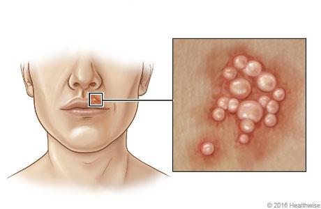 Ubicación del herpes labial cerca de la boca, con detalle de las ampollas