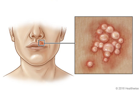 Location of cold sores near mouth, with close-up of blisters