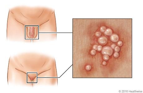 Ubicación del herpes genital en hombres y mujeres, con detalle de las ampollas