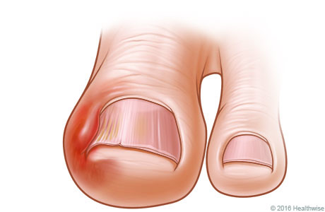 Big toe with an ingrown nail, showing redness and swelling