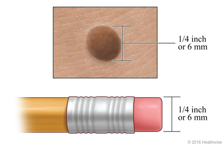 A mole, showing its width compared to a pencil eraser