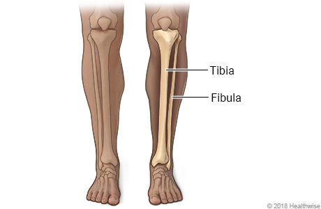 Skeletal view of bones of lower leg, the tibia and fibula (shinbone)
