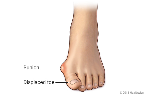 Foot with bunion and displaced toe