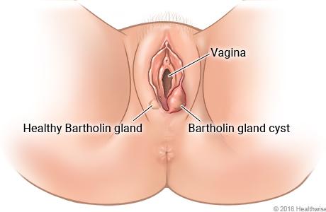 Female genital area, showing a healthy Bartholin gland and a Bartholin gland cyst