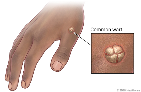Common wart on hand, with close-up of wart
