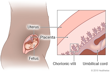 Fetus in uterus, with detail of placenta showing the chorionic villi and umbilical cord