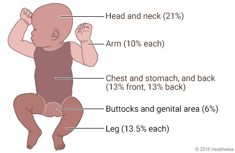 Baby with areas of body marked to show percentages of surface area