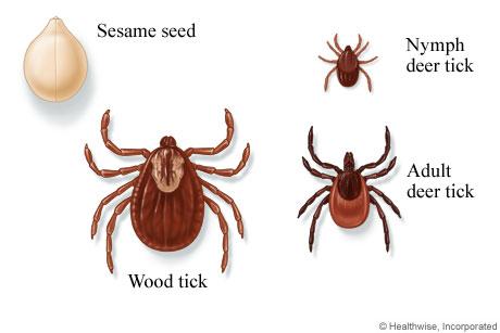 Wood and deer ticks