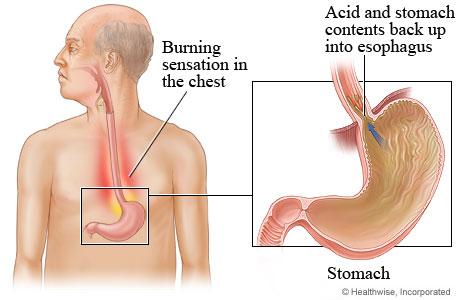 Picture of gastroesophageal reflux disease (GERD)