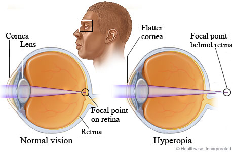 Cross sections of the eye for normal vision and for farsightedness