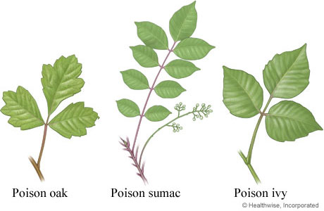 Leaves of poison oak, sumac, and ivy