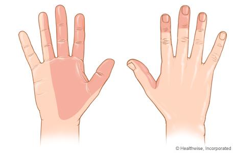 Zonas de la piel a las que el nervio mediano proporciona sensibilidad