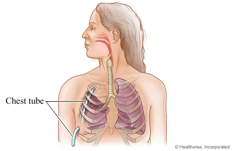 Picture of chest tube placement after lung surgery