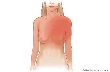 Imagen de las zonas más comunes en las que se sienten los síntomas de angina