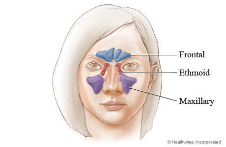 Where facial sinus cavities are located (front view)