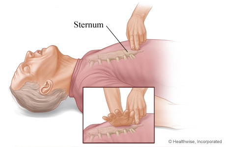 CPR on adult, showing where to place hands on sternum for chest compressions