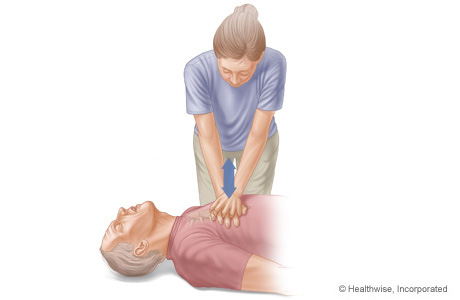 CPR on adult, showing arm and body positions for doing chest compressions